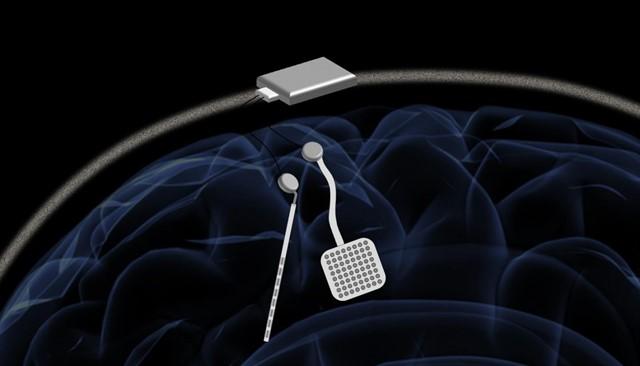 Un 'marcapasos inalámbrico para el cerebro' podría ofrecer un nuevo tratamiento para trastornos neurológicos