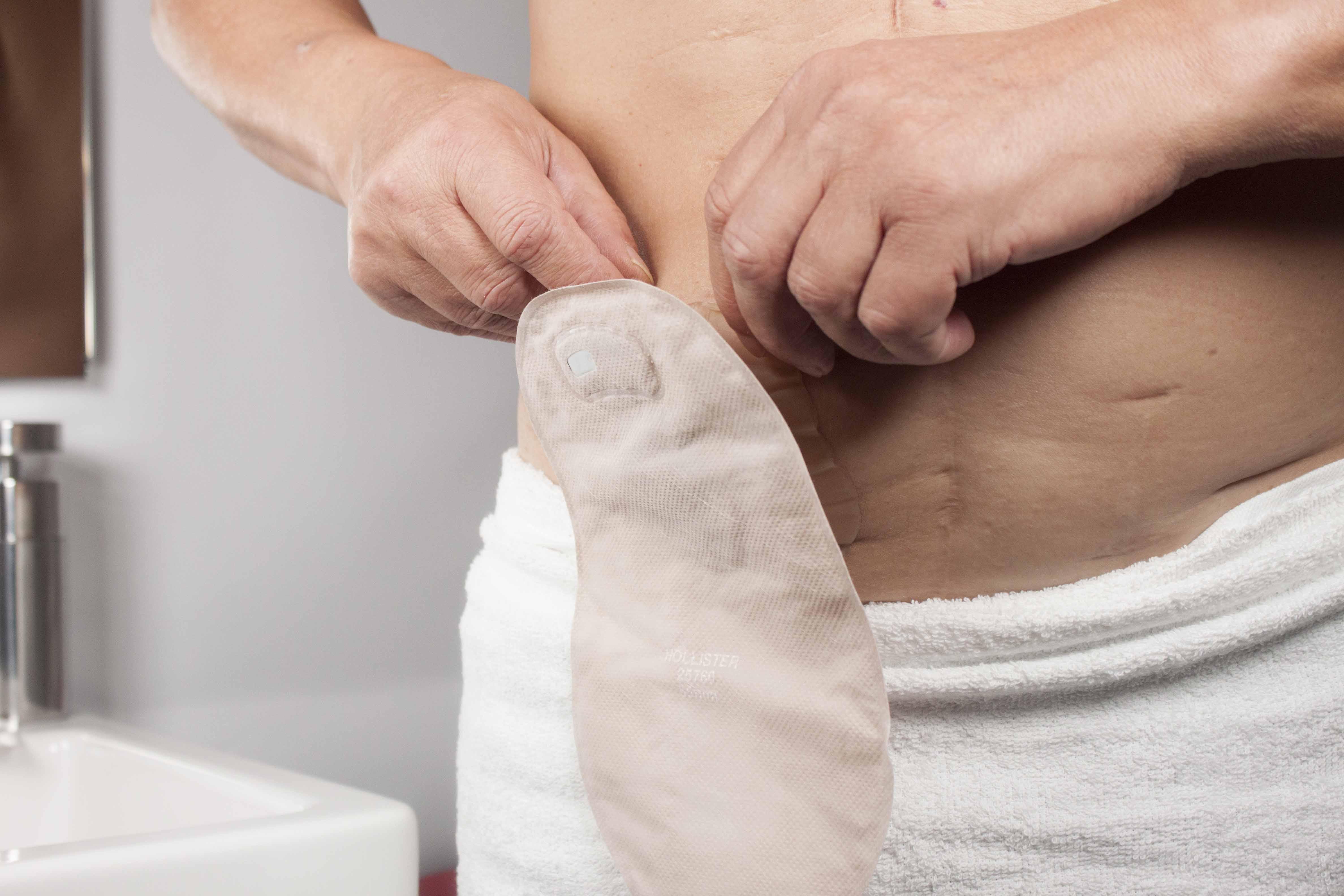 Enfermeras estomaterapeutas inician un estudio sobre la valoración que se hace en España sobre la piel periestomal