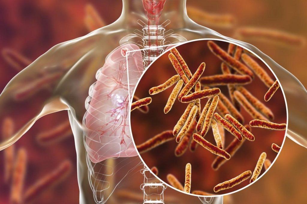 Un estudio desmiente que la infección por tuberculosis dure toda la vida