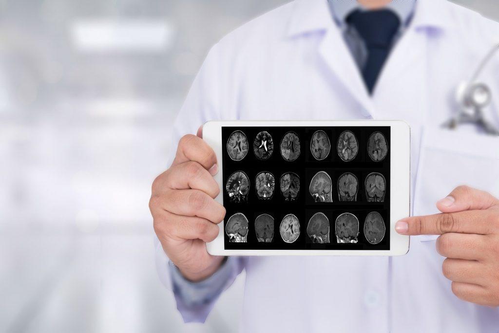 Los genes no son el único factor de riesgo de aparición del alzhéimer, según un estudio
