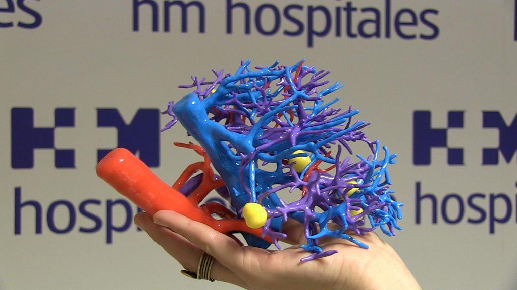 HM Hospitales incorpora el 3D y personaliza su cirugía oncológica permitiendo planificar las intervenciones que ganan en precisión y seguridad