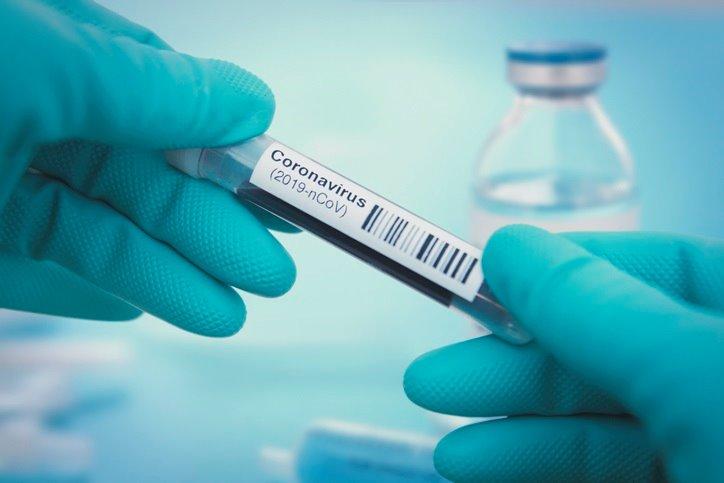Sanidad actualiza los datos tras 12 días sin hacerlo y cifra en 28.313 los fallecidos por COVID-19