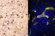 Descubierto un biomarcador que predice la eficacia de la inmunoterapia en cáncer