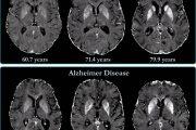 La proximidad a la edad parental de inicio del alzhéimer indica mayor riesgo de enfermedad en mujeres