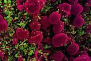 Un estudio sugiere que la mayoría de mutaciones del SARS-CoV-2 se pierden durante la transmisión