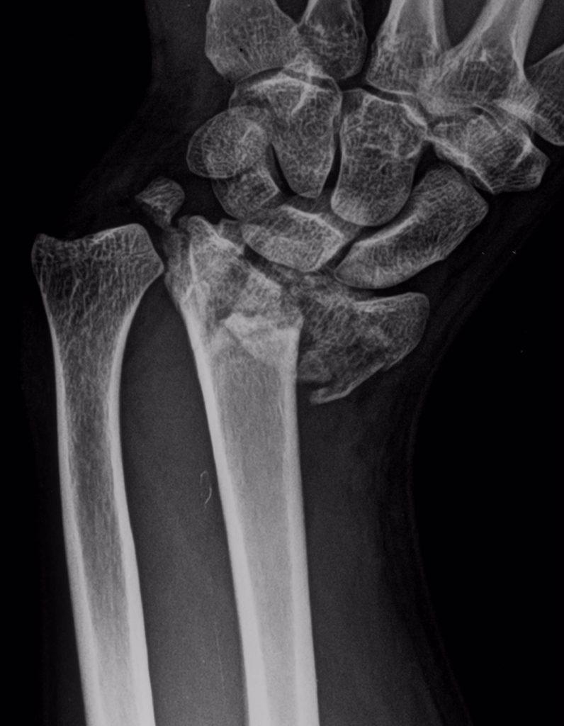 Expertos advierten de que la incidencia de las fracturas por fragilidad ósea en España aumentará más de un 29% para 2030