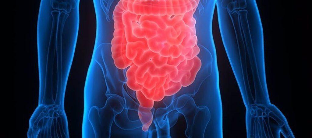 Estudian nuevas vías para aumentar el número de pacientes con cáncer de intestino que son tratados con éxito