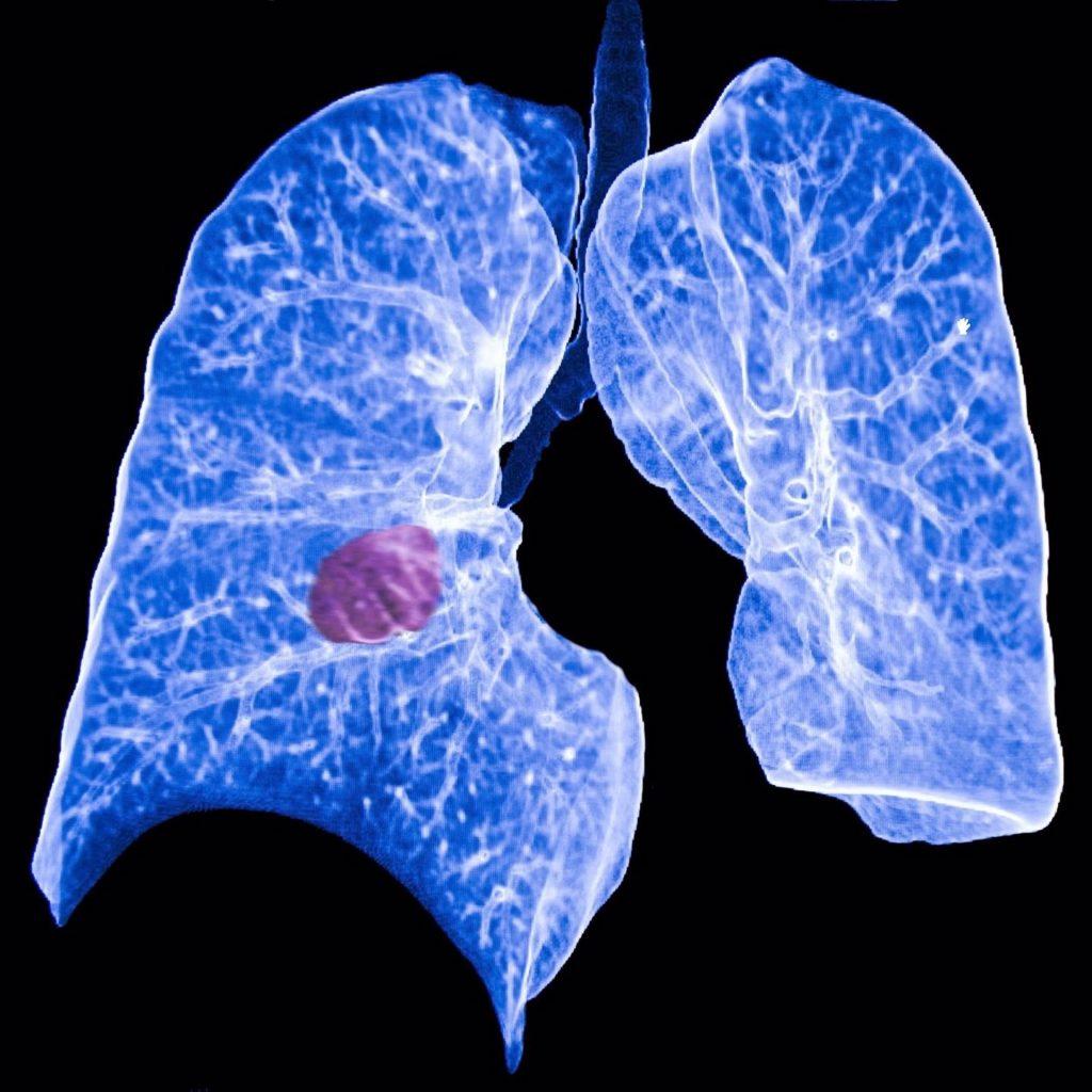 Los pacientes con cáncer de pulmón y antecedentes familiares reciben un diagnóstico más temprano